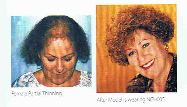 Top Partial Systems – Female Pattern Baldness